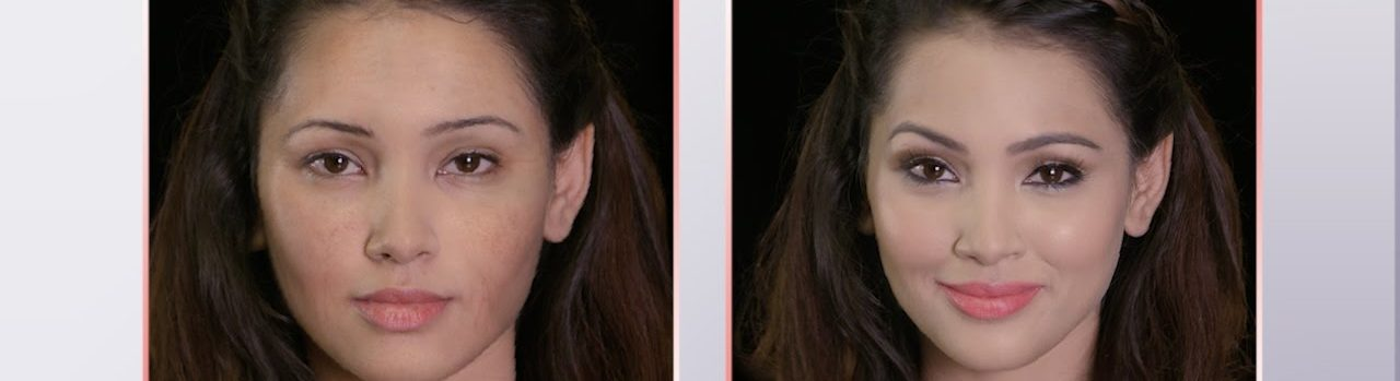 Microdermabrasion for All